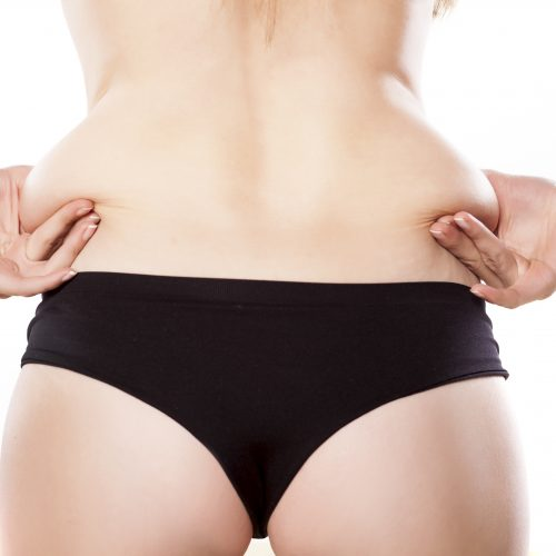 How to Know If You're a Good Liposuction Candidate