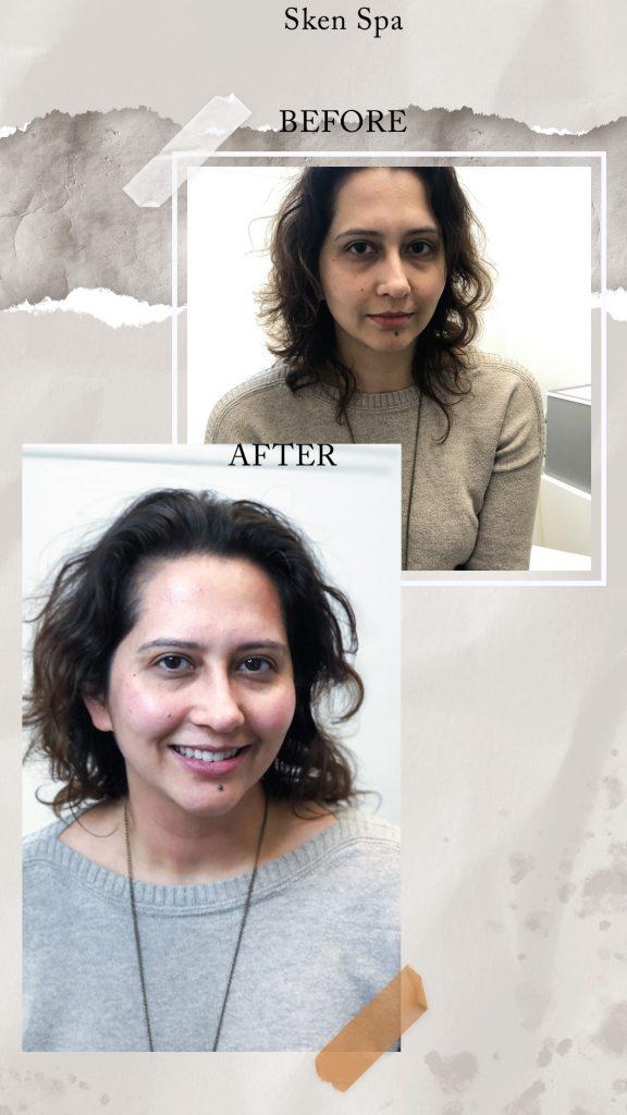 Dermal-Infusion-Facial-at-Skën-Spa-Illuminates-Dull-Skin